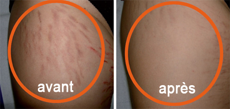 Avant et après le traitement des vergetures